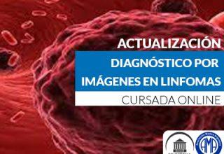 Diagnostico x imágenes en Linfomas