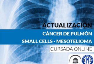 Cancer de pulmon small cells y mesotelioma