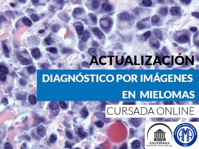 Mieloma: diagnóstico x imágenes