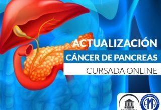 Avances en cáncer de páncreas